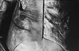 Tony_Ward_photography_early_work_Anatomy_Lesson_1977_human_remains_disposal_torso_stitches_autopsy_death_deterioration_chest_breast_cancer_scar.jpg