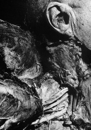 Tony_Ward_photography_early_work_Anatomy_Lesson_1977_human_remains_disposal_torso_stitches_autopsy_death_deterioration_ear_shoulder_nerves.jpg