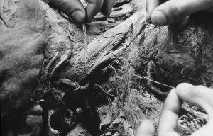 Tony_Ward_photography_early_work_Anatomy_Lesson_1977_human_remains_disposal_torso_stitches_autopsy_death_deterioration_major_arteries_nerves_neck_region.jpg