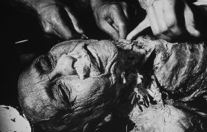 Tony_Ward_photography_early_work_Anatomy_Lesson_1977_human_remains_disposal_torso_stitches_autopsy_death_deterioration_nose_gause.jpg