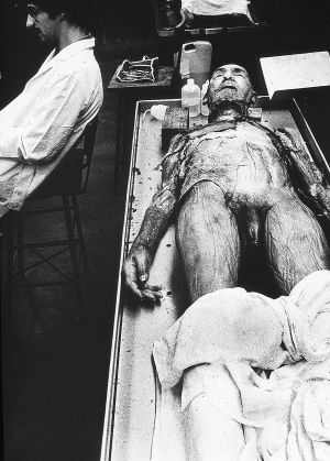 Tony_Ward_photography_early_work_Anatomy_Lesson_1977_human_remains_disposal_torso_stitches_autopsy_death_deterioration_penis_male.jpg