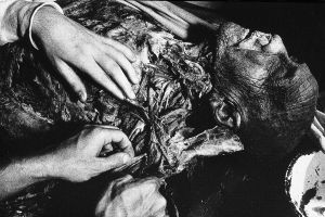 Tony_Ward_photography_early_work_Anatomy_Lesson_1977_human_remains_disposal_torso_stitches_autopsy_death_deterioration_students_learning.jpg