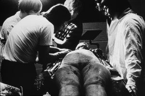 Tony_Ward_photography_early_work_Anatomy_Lesson_1977_human_remains_disposal_torso_stitches_autopsy_death_deterioration_teaching_med_students.jpg