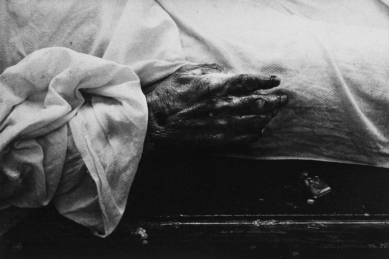 Tony_Ward_Photography_early_work_documentary_Anatomy_Lesson_medical_college_Temple's_Kresge_Science_Center_dead_male_dead_hand